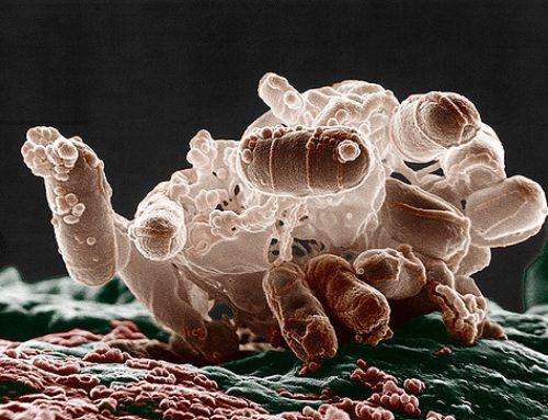 Infecțiile urinare